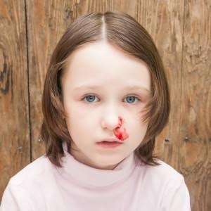 OVEC child with bloody nose